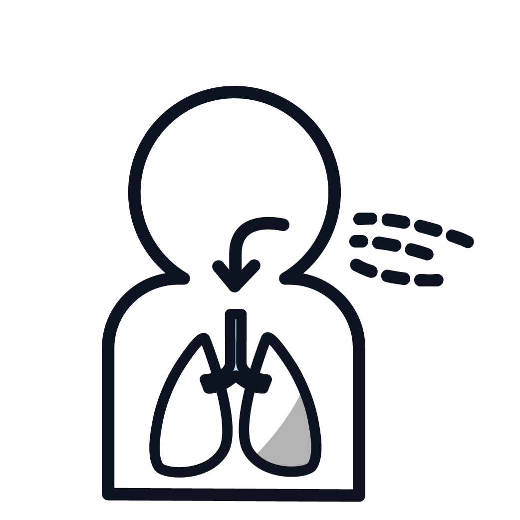 This is an image representing asbestosis.