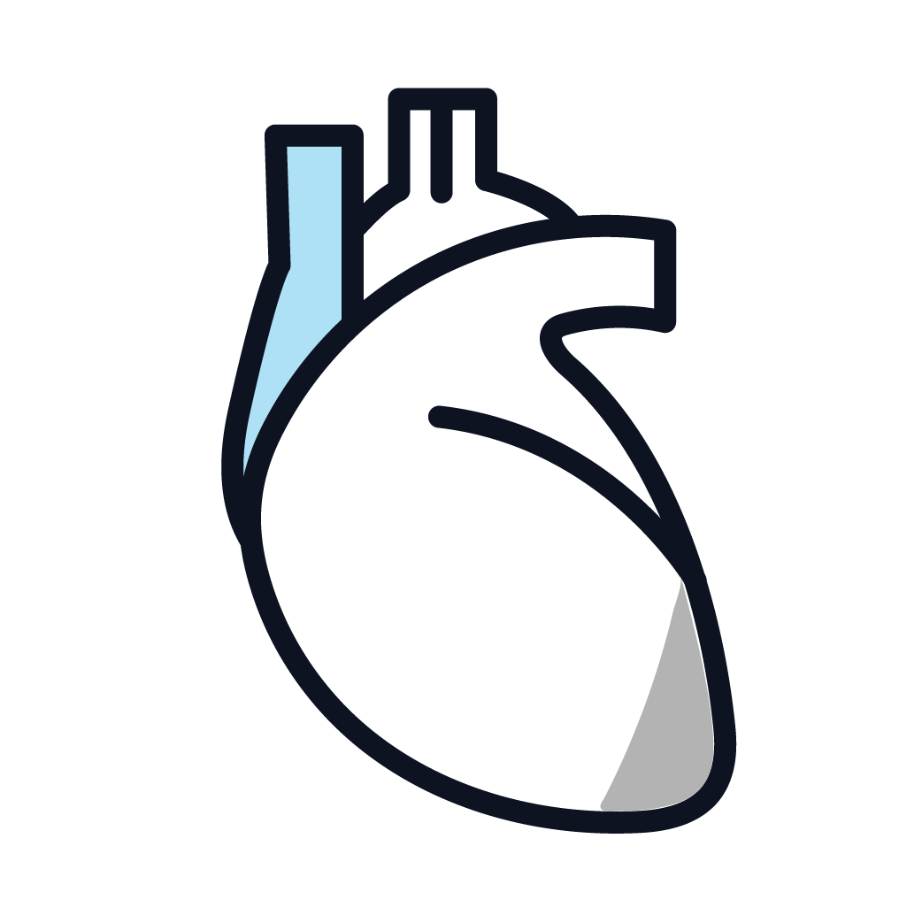 This is an image of stage 1 pericardial mesothelioma.