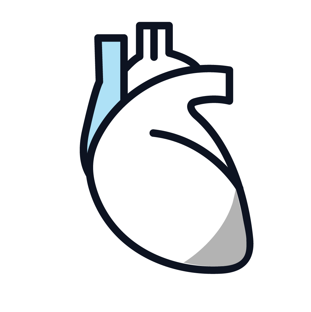 This is an image of stage 2 pericardial mesothelioma.