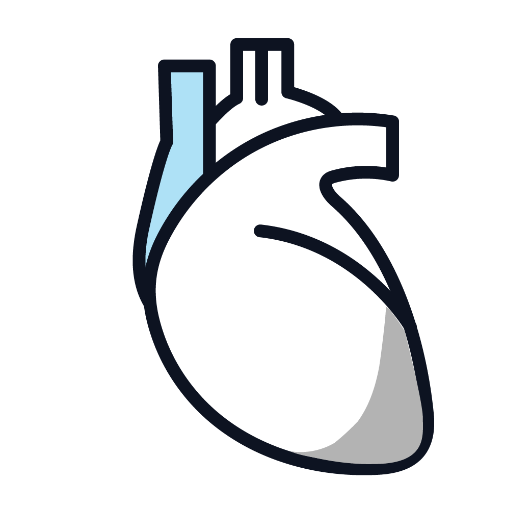 This is an image of stage 3 pericardial mesothelioma.