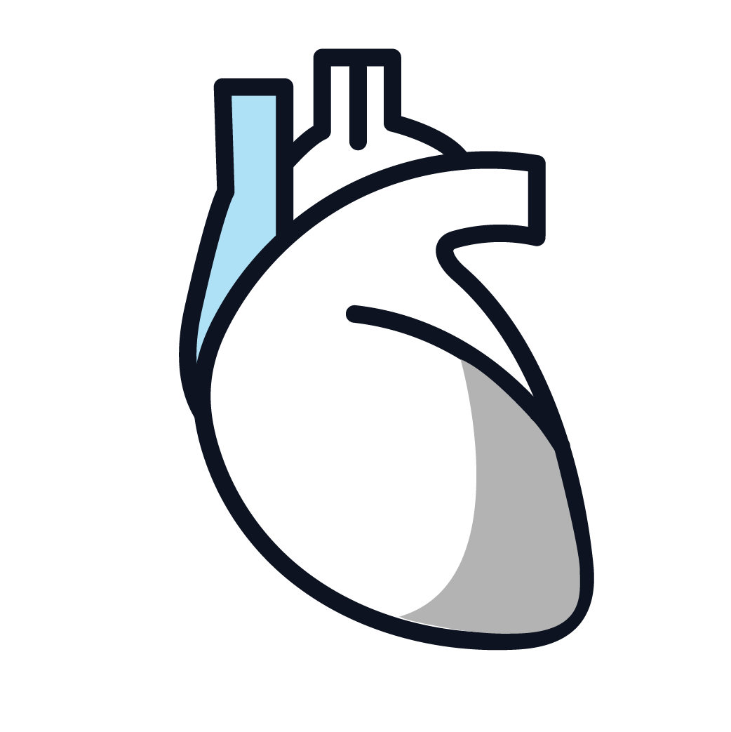 This is an image of stage 4 pericardial mesothelioma.
