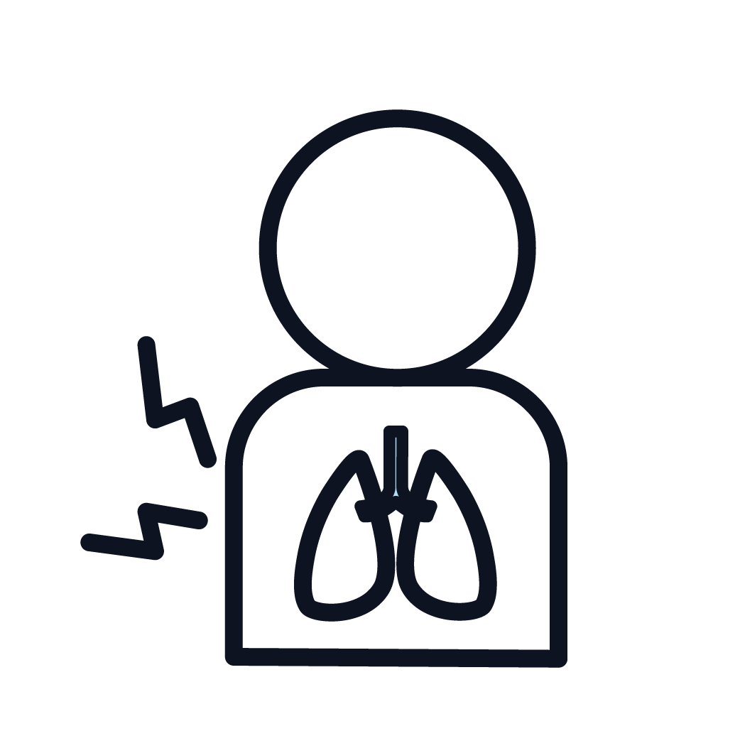 This is an example of mesothelioma symptoms.
