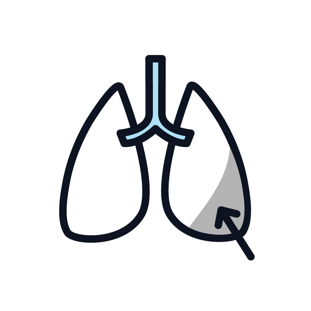 This is an icon showing fluid in the lung that needs to be drained.