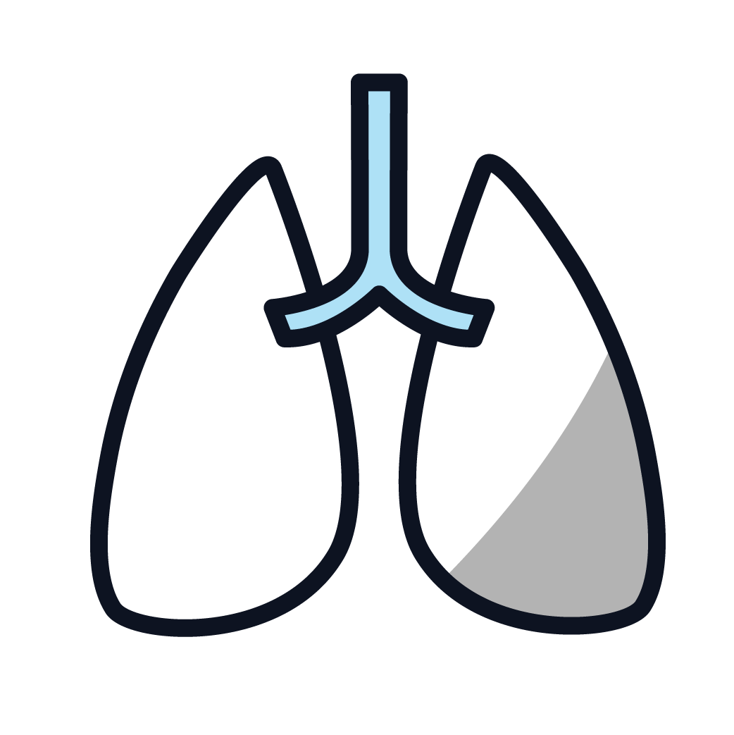 This is an image representing Lung Cancer.